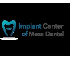 Dental Implants San Diego Cost