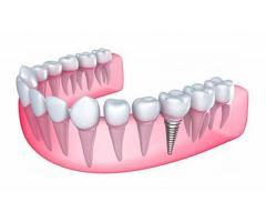 Best Dental Clinic in Chennai